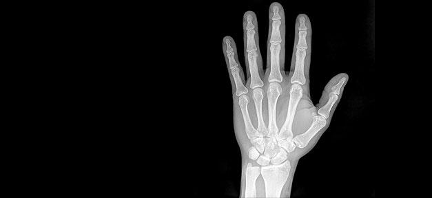 röntgen, x-ray, hand, gesundheit, medizin, untersuchung